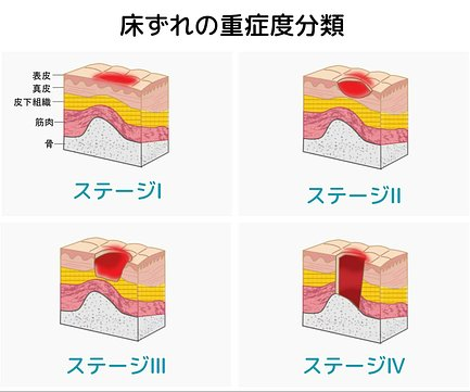 画像 床ずれ 慢性期褥瘡(じょくそう)では「浅い褥瘡(じょくそう)」と「深い褥瘡(じょくそう)」によって治療法が変わる :Part5